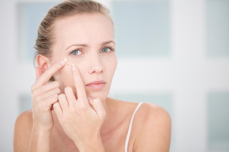 7 способов предотвратить акне